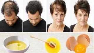 وصفة سحرية لإعادة إنبات الشعر بأسرع وقت ممكن!