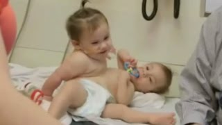 getlinkyoutube.com-Conjoined Twins Successfully Separated