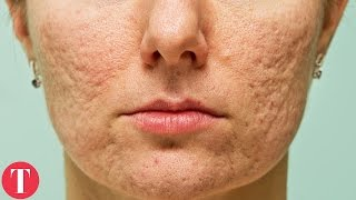 10 Things You Didn't Know About ACNE