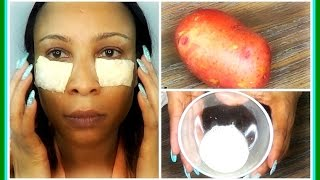 getlinkyoutube.com-HOW TO USE POTATO TO GET RID OF DARK UNDER EYES CIRCLES | DOES IT WORK | Khichi Beauty