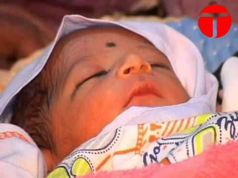 Columnpk com  6 Legs baby Boy Born in Pakistan   YouTube
