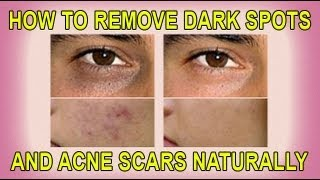getlinkyoutube.com-How to Remove Dark Spots and Acne Scars Naturally