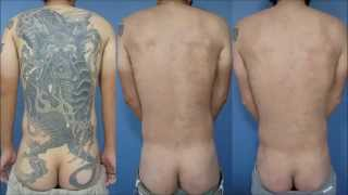 getlinkyoutube.com-刺青除去(広範囲)途中経過2 Laser Tattoo Removal (Large Tattoo) Interim report2