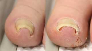 getlinkyoutube.com-巻き爪治療の革命児!手術不要で痛い巻き爪が治る感動の瞬間です。