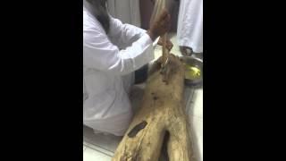 الشيخ البقمي:إبطال سحر عائلة  في خشبة حطب