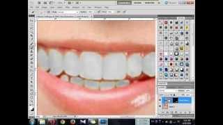getlinkyoutube.com-How To Whiten Teeth - Photoshop Tutorials In Sinhala #1