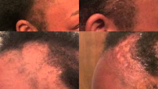 getlinkyoutube.com-Dr Miracles DOES WORK! Temple and Nape Balm Review