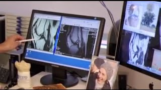 getlinkyoutube.com-Разрыв крестообразной коленной связки
