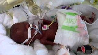 getlinkyoutube.com-超低出生体重児★305グラム★生後2日目■extremely low birth weight infant★305g★