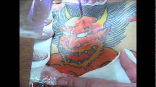 getlinkyoutube.com-刺青除去(広範囲3) Laser Tattoo Removal (Large Tattoo3)