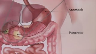 Irritable Bowel Syndrome & Its Symptoms