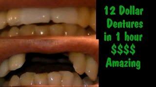 Cheap Dentures 12 dollar dentures (bridge) in about 1 hour (DIY)