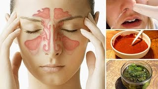 8 Ways to Clear a Stuffy Nose Naturally