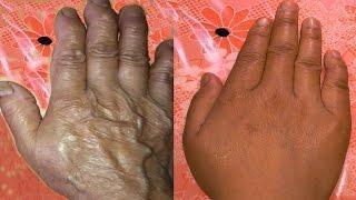 getlinkyoutube.com-How to stop wrinkles on hand & fingers
