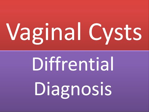 Vaginal Cysts and Swellings : Differential Diagnosis - Discussion