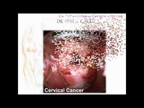 VPH Y CANCER CERVICOUTERINO