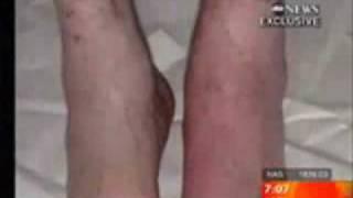 getlinkyoutube.com-مايكل الجاكسن وبداية اعراض المرض صور نادره