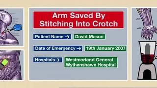 getlinkyoutube.com-Arm Saved by Stitching Into Crotch   Part 1 - Bizarre ER