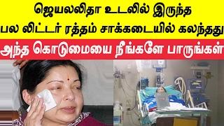சாக்கடையில் கலந்த ஜெயலலிதா ரத்தம் | Jayalalitha embalming in Apollo hospital