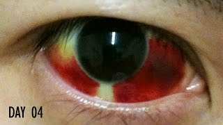 getlinkyoutube.com-27 Days Healing Time Lapse: Broken Blood Vessel in Eye (Subconjunctival Hemorrhage)