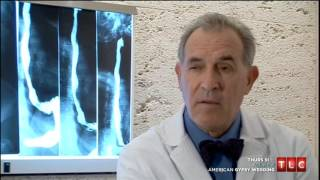 getlinkyoutube.com-The World's Heaviest Man Manuel Uribe 2007 TV Documentary