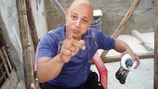 getlinkyoutube.com-اول عملية جراحيه في الغيه المصرية علي اليوت يوب استأصل كيس دهني لفرد حمام( احمد ادم )
