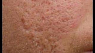 getlinkyoutube.com-Do At Home Acne Scar Treatments Work [DermTV.com Epi #458]