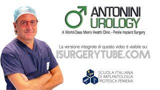 getlinkyoutube.com-Penile Prosthesis Gabriele Antonini Disfunzione erettile fuga venosa corpi cavernosi PDE5 inibitori