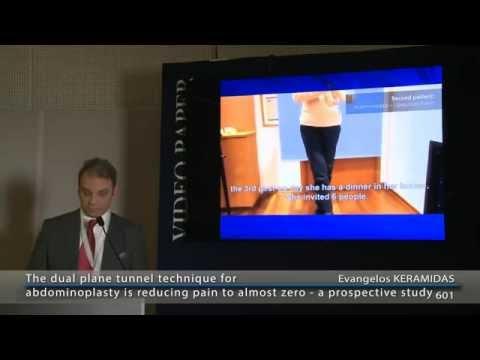 Κοιλιοπλαστική Χωρίς Πόνο - Παγκόσμιο συνέδριο πλαστικής χειρουργικής