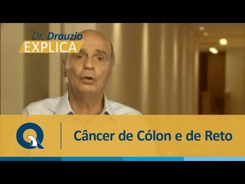 Quem tem mais risco de desenvolver câncer de cólon ou de reto?