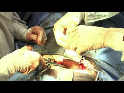 histerectomia total por volumoso tumor / total hysterectomy for bulky tumor