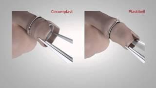 getlinkyoutube.com-Circumplast vs Plastibell circumcision