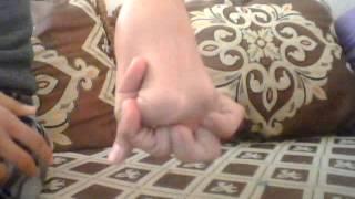 اليد المطاطية