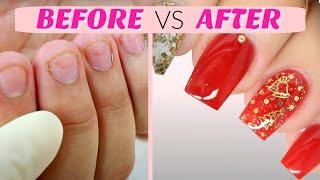 getlinkyoutube.com-How to Fix Short Nails with Acrylic + Classy Christmas Nails