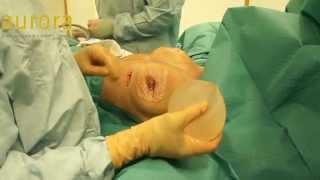 getlinkyoutube.com-Severe Single PIP Implant Rupture