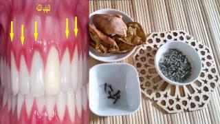 getlinkyoutube.com-علاج التهاب ونزيف اللثة ورائحة الفم الكريهة