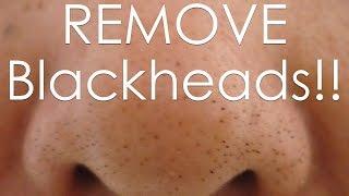 getlinkyoutube.com-DIY how to REMOVE Blackheads Using an EGG!!