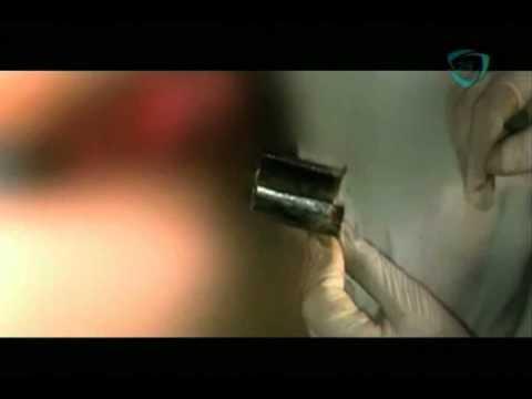 La sobremesa Se le atora el genital en un tubo a un hombre en España