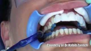 getlinkyoutube.com-Lumineers Hollywood smile veneers cosmetic dentistry step by step by Dr.Habib Zarifeh