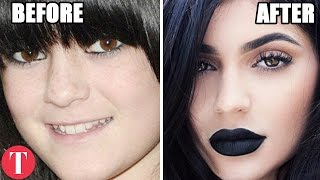 getlinkyoutube.com-10 Famous People Who Have Admitted To Plastic Surgery