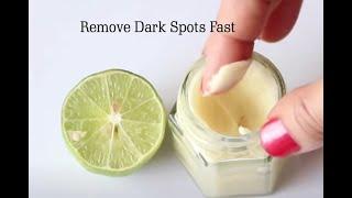 getlinkyoutube.com-Lemon Dark Spot Remover & Whitening Cream