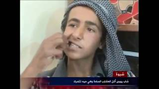 getlinkyoutube.com-شاب يهوى أكل العقارب السامة وهي حية بمحافظة شبوة !!