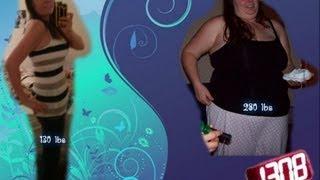 getlinkyoutube.com-1 Year post op (gastric sleeve)(some skin)