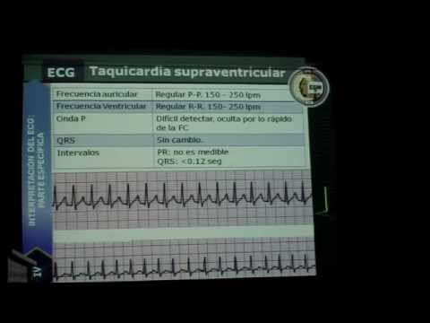 Interpretacion EKG Dr. Curi Abril 2014