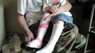 getlinkyoutube.com-Taking off my Daughters Leg Braces