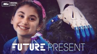 getlinkyoutube.com-How 3-D printed arms are changing kids' lives around the world