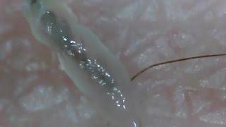getlinkyoutube.com-#11 超スッキリ!毛根鞘を引っこ抜き!(Pull out hair root & root sheath)