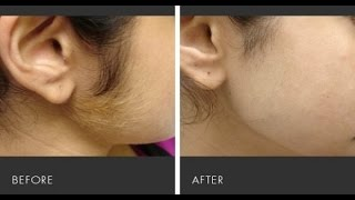 getlinkyoutube.com-Ghair Zaroori Baal Khatam Karne ka Asan Totka (Remove unwanted hair)