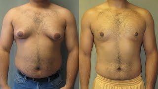 getlinkyoutube.com-التخلص من دهون الصدر عند الرجال الجينو Gynecomastia