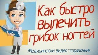 getlinkyoutube.com-Как лечить грибок ногтей народными средствами